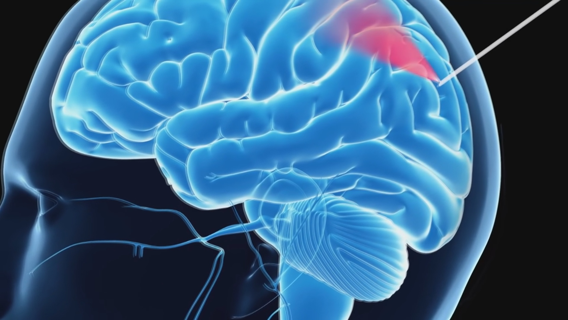 """Kameralı """"ağıllı"""" iynə beyin biopsiyasını daha təhlükəsiz şəkildə həyata keçirməyə imkan verir"""