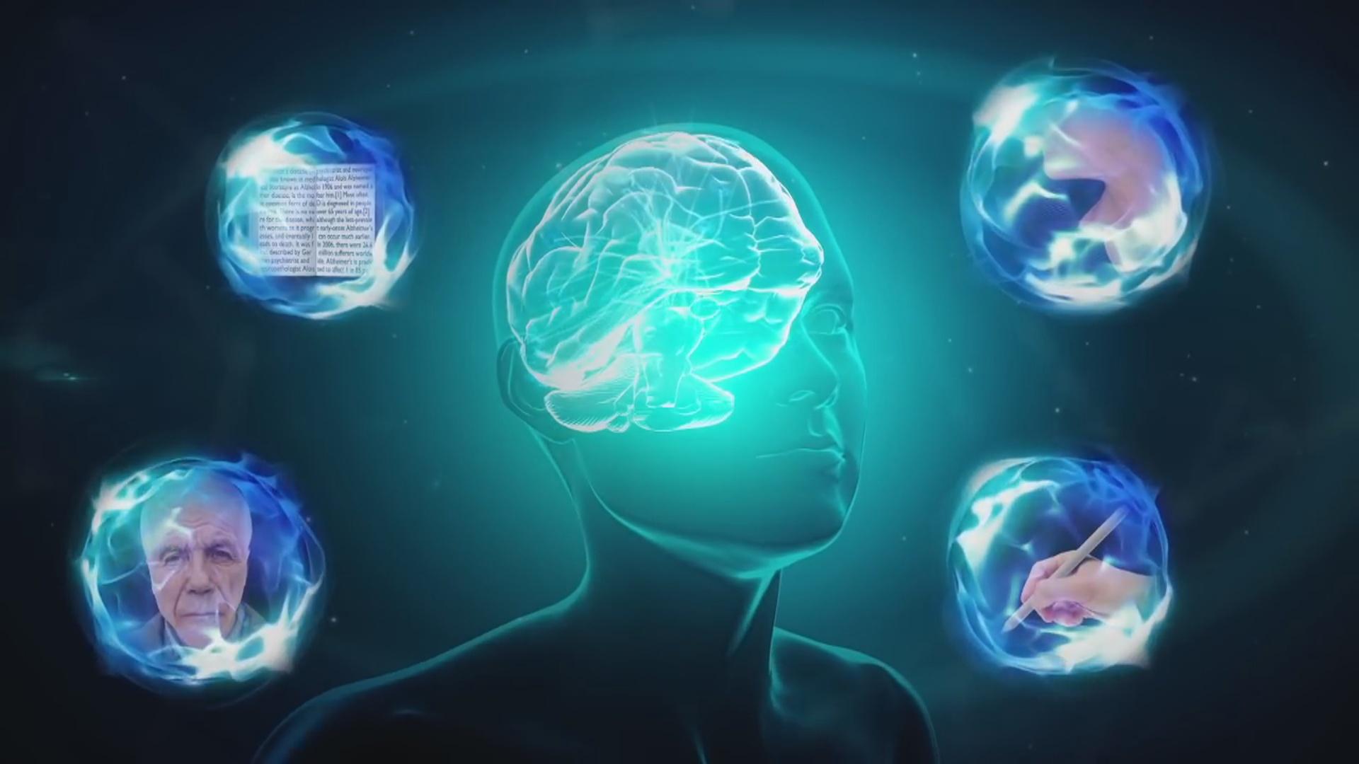 Süni intellekt Alzheimer xəstəliyini 6 il öncədən müəyyənləşdirir