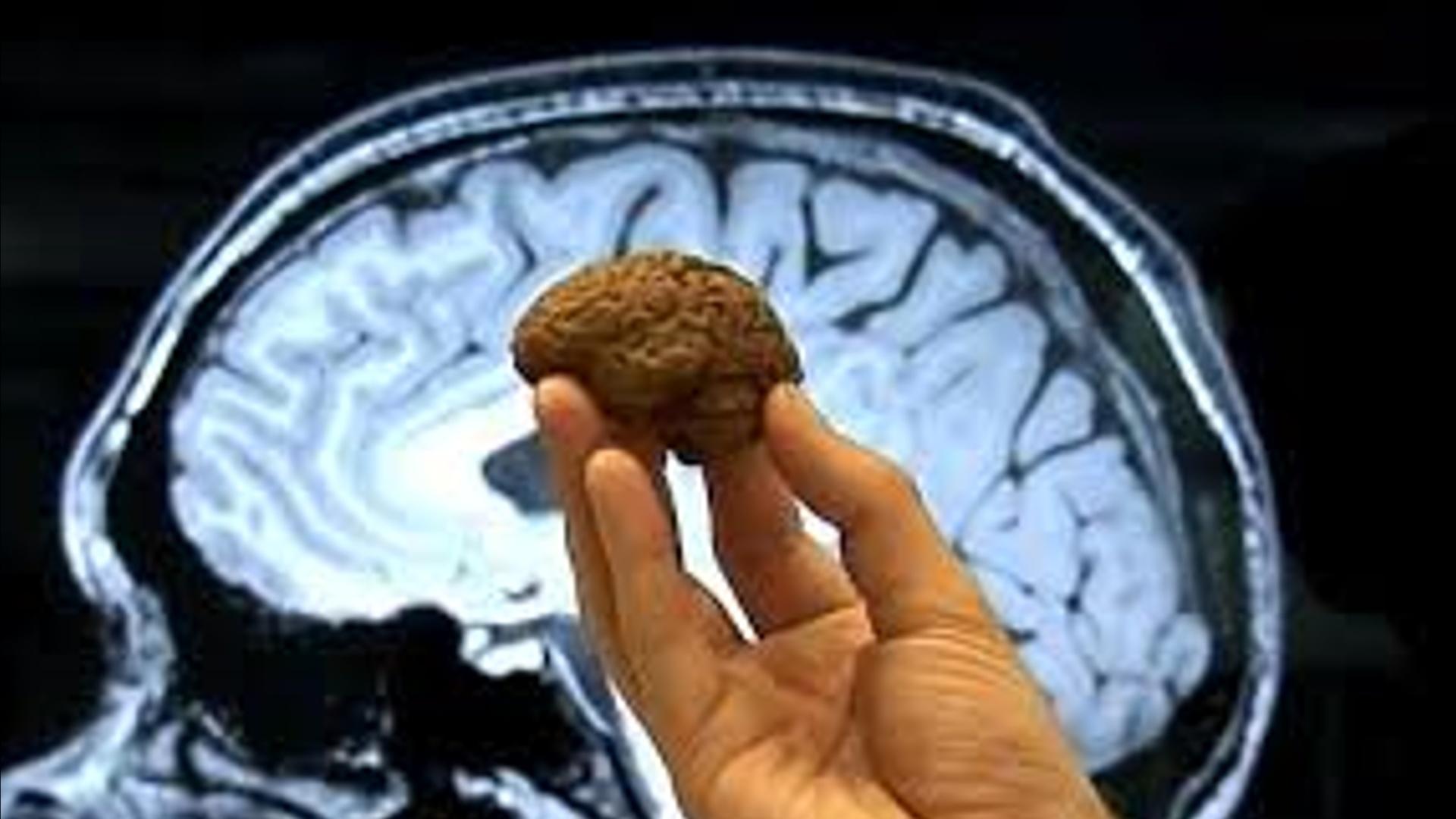 İlk dəfə olaraq mini beyin inkişaf etdirildi