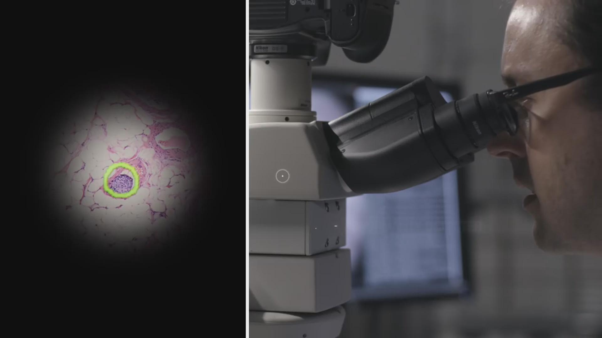 """""""Ağıllı"""" mikroskop vasitəsilə xərçəng xəstəliyinə diaqnoz qoyulacaq"""
